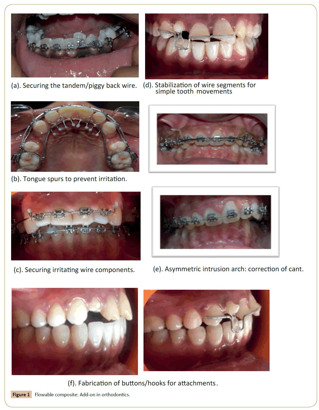 orthodontics-endodontics-composite